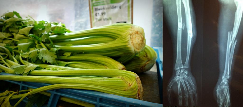 Celery looks like bones